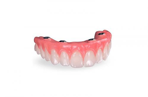 Las mejores dentaduras híbridas CAD/CAM de metal acrilico