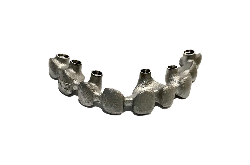 Las mejores estructuras para protesis fija metal porcelana sobre implante CAD/CAM