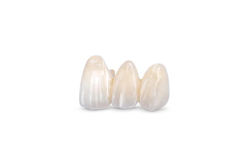 Los mejores puentes ZR de porcelana