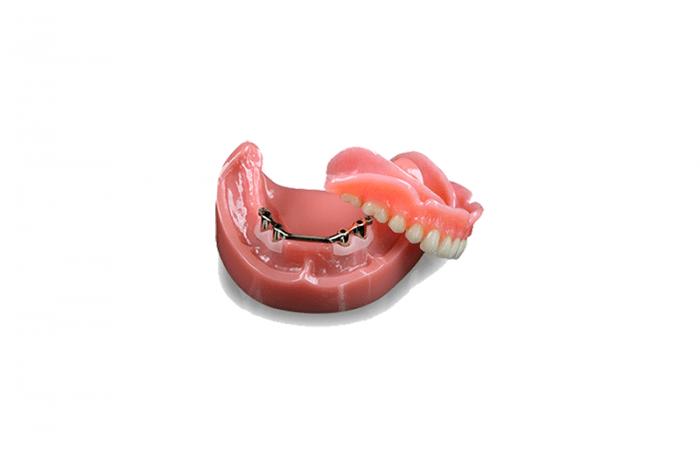 Las mejores sobre dentaduras con barra hader de metal