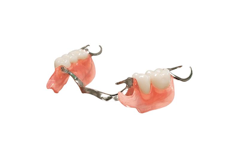 Las mejores prótesis combinadas duraflex/metal